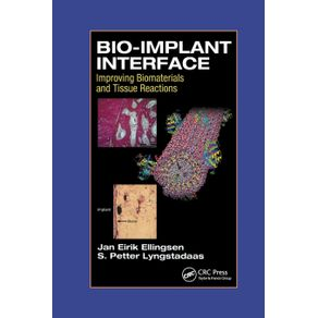 Bio-Implant-Interface